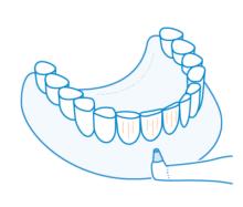 Zahnversiegelung